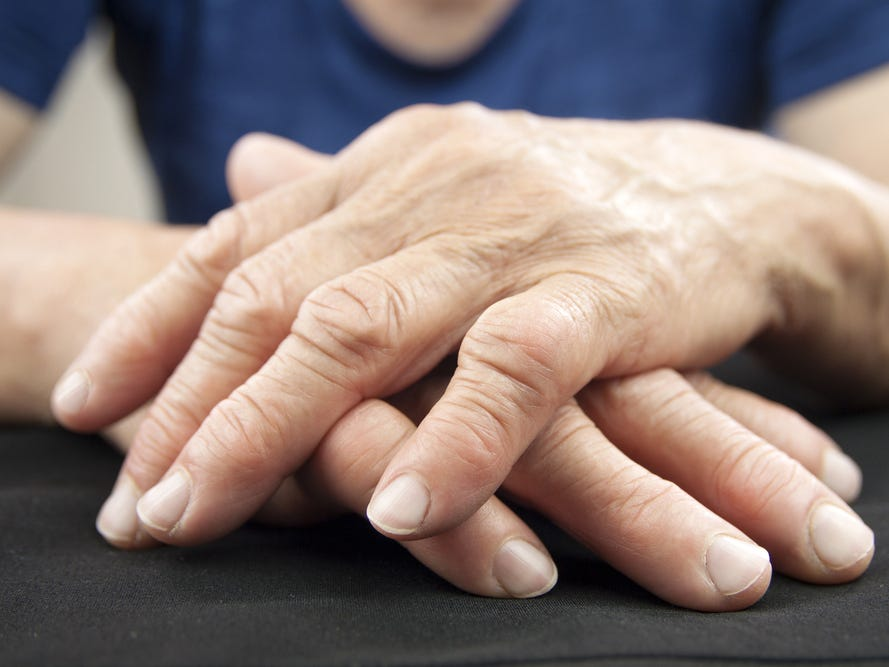 Do I Have Arthritis? Know The Early Symptoms