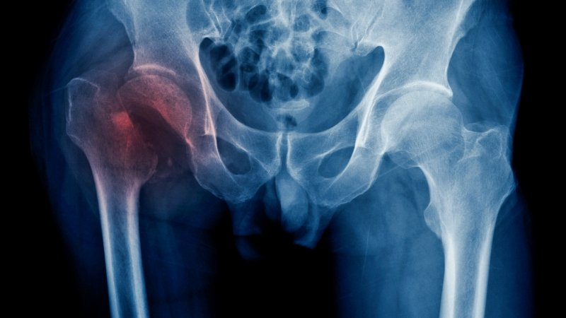 Management of Hip Fractures in the elderly